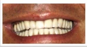 Tandfacader og tandkroner