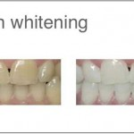 Helvetic-Clinics-teeth-whitening