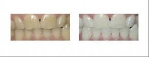tandblegning i udlandet
