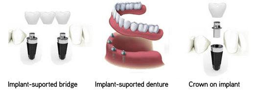 dental-care-dental-implants-abroad