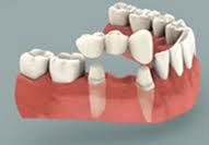 tandbroer - behandling i udlandet