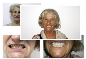 Kosmetisk tandpleje i udlandet