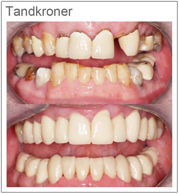 Tandkroner