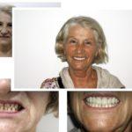 cosemtic-dentistry-745×480